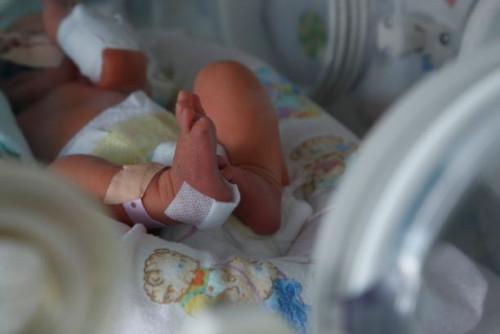 """МБАЛ """"Бургасмед"""" е част от кампания за недоносените бебета"""